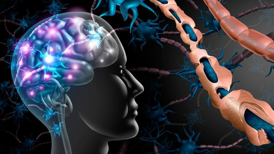 Esclerosis Múltiple: ¿cómo detectar la progresión de la enfermedad?