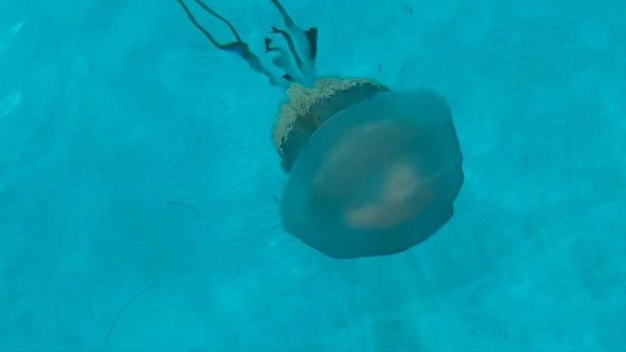 Qué hacer si te pica una medusa