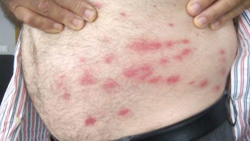 Cuidado con la mosca negra: Así es la mosca 'chupasangre', la plaga de este verano