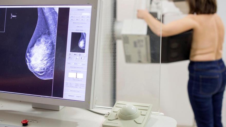 Un nou model pot predir si tindràs càncer de mama fins a 20 anys vista