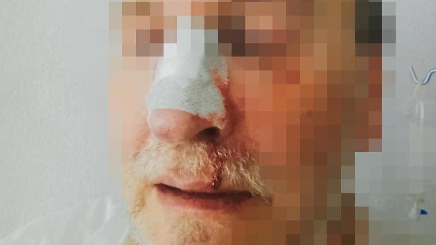 Un recluso de Villabona le rompe la nariz a un funcionario de un puñetazo