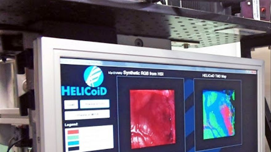 La ULPGC obtiene su primera patente japonesa: tecnología hiperespectral de detección de tumores