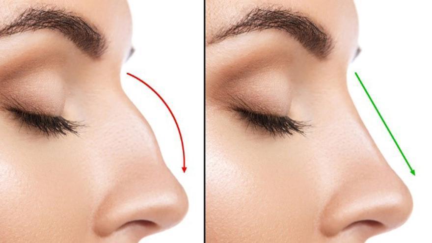 Vols millorar la mida, forma i aspecte del nas?