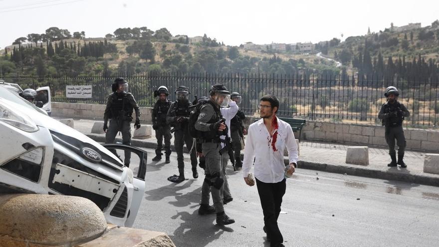 Tres heridos en un altercado con palestinos y posterior colisión de un vehículo israelí en Jerusalén