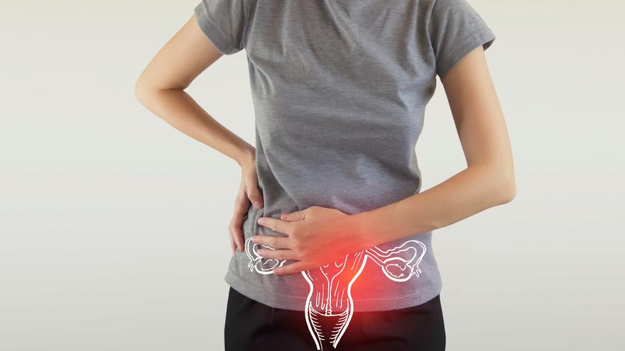 TEST | ¿Qué es y cómo se puede prevenir el cáncer de cuello uterino?
