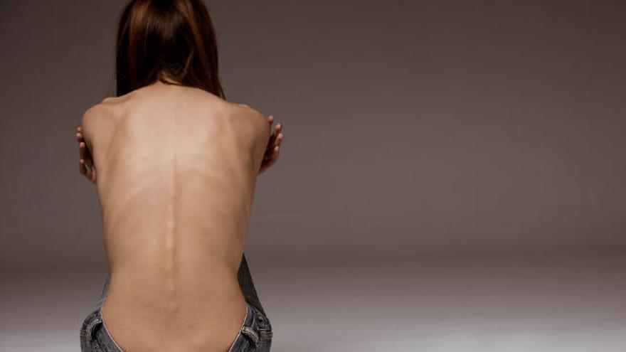 Una madre exige una unidad para tratar la anorexia en Canarias