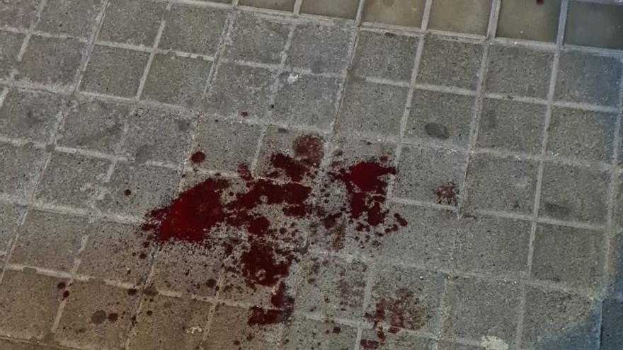 Un hombre, en coma tras recibir cuatro puñaladas en Schamann