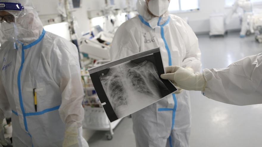 La acumulación de virus en los pulmones es la causa principal de los fallecimientos por Covid-19