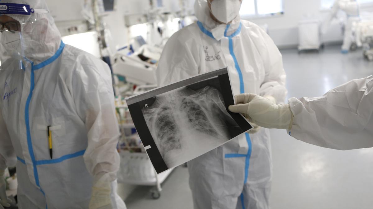 La acumulación de virus en los pulmones, principal causa de muerte por Covid-19.