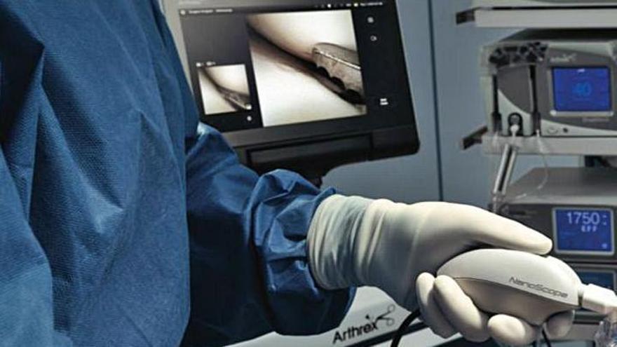Las nanoartroscopias detectan en 15 minutos si hay signos de artrosis y lesión en las rodillas