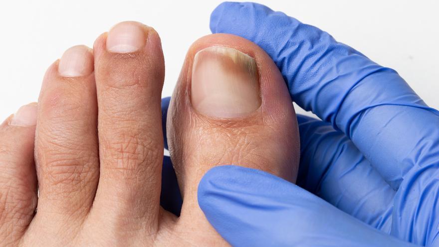 L'onicomicosi o fongs en els peus