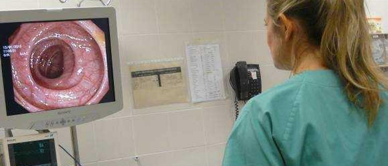 La prevención permite al hospital controlar el cáncer de colon