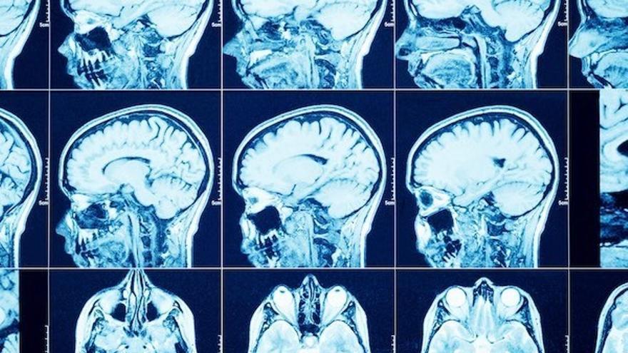 Lanzan un crowdfunding para investigar la cura de tumores cerebrales en 30 días