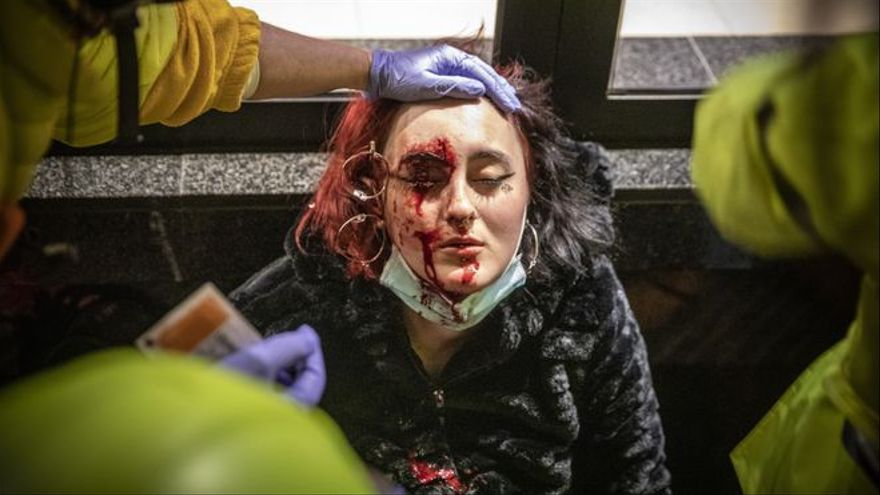 Los Mossos imputados por una lesión ocular por un proyectil alegan que siguieron el protocolo