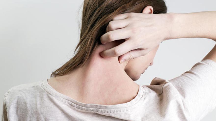 La psoriasis, una enfermedad sin cura y con grandes niveles de ansiedad y depresión