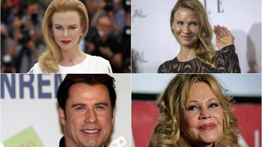 Las estrellas más operadas de Hollywood