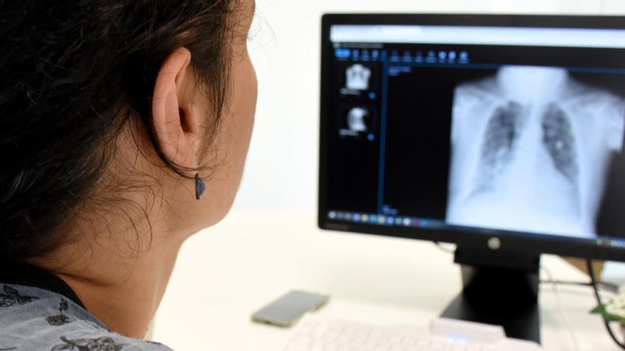 Un sistema pioner d'Althaia posa a disposició dels usuaris imatges clíniques