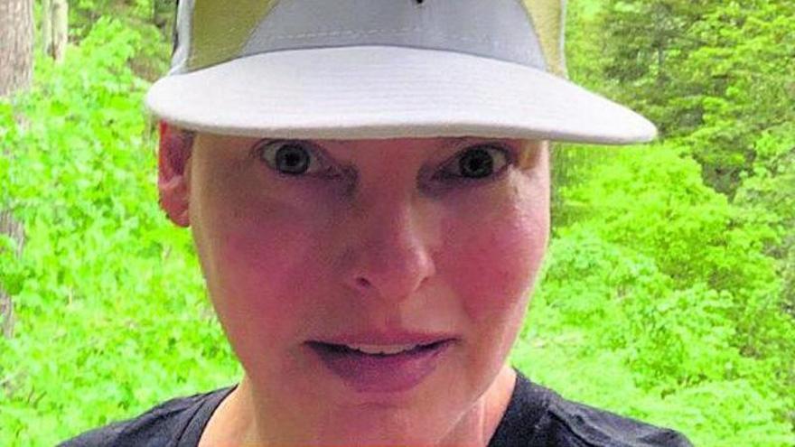 ¿Qué es la hiperplasia adiposa paradójica, la enfermedad que ha desfigurado a Linda Evangelista?
