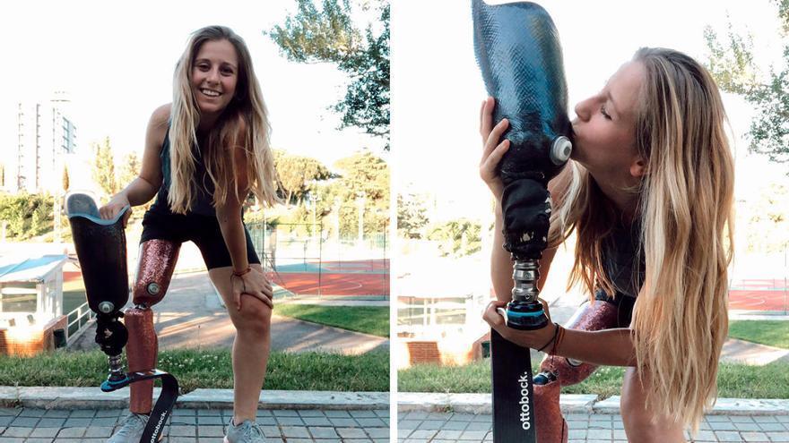 Desirée Vila desvela qué pasó con su pierna amputada