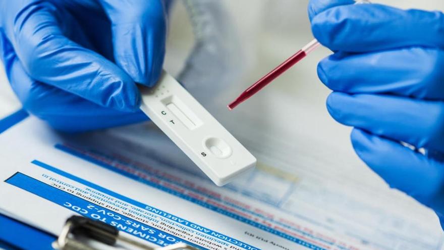 ENCUESTA  - ¿Tendremos una vacuna eficaz contra la Covid-19 antes de final de año?