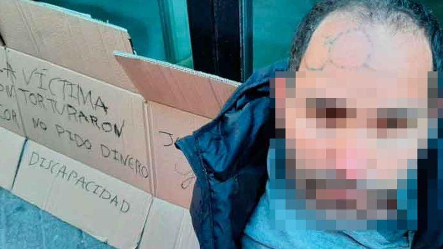 """El joven con discapacidad torturado en Manacor inicia una huelga de hambre para pedir """"justicia"""""""