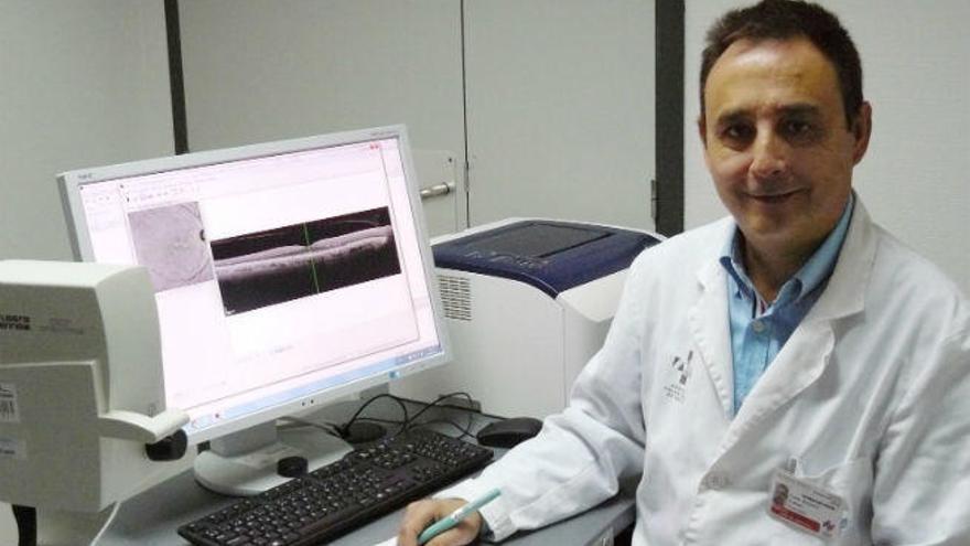 El Hospital Universitario de La Ribera, en la vanguardia en la intervención de cataratas