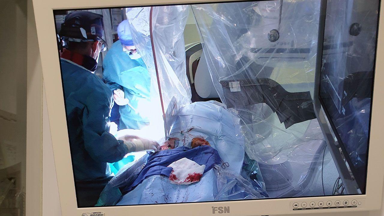Uno de los monitores conectados a la sala de control durante la operación